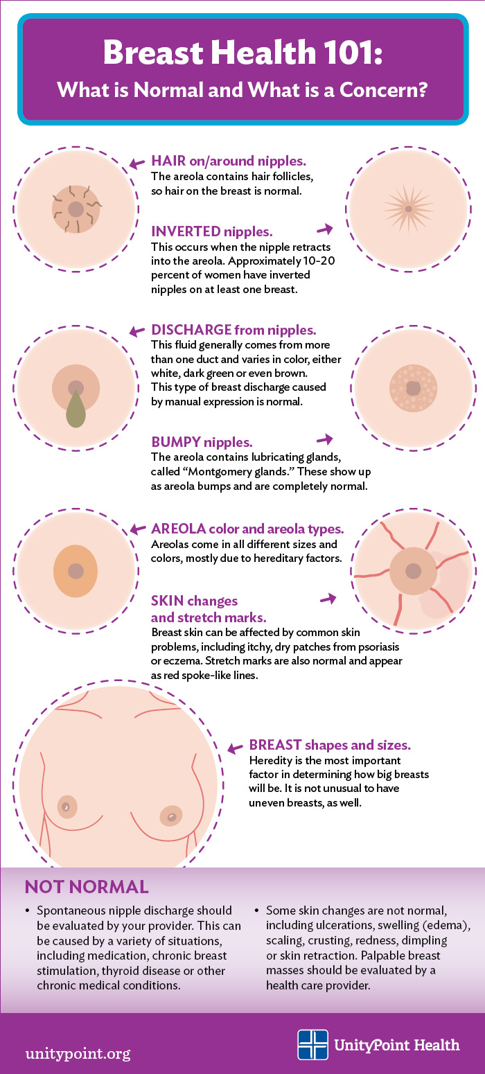 What Does Breast Cancer In Men Look Like