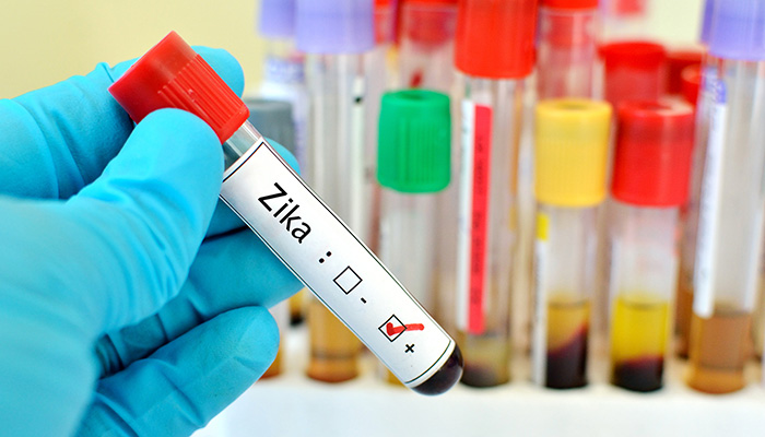Five Misconceptions about Zika Virus